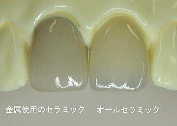 金属使用のセラミック オールセラミック写真1